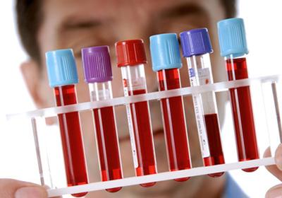 Лечение рассеянного атеросклероза